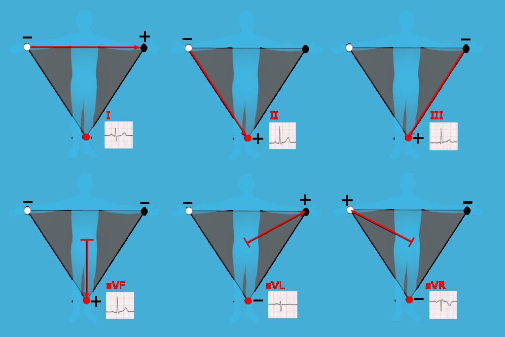 Векторы измерения ЭКГ