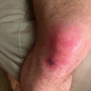 Моё колено после падения на льду в кроссовках UA Horizon RTT GTX