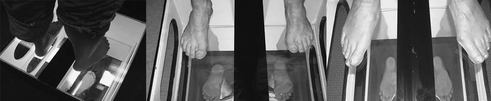Нормальный, высокий и низкий свод стопы