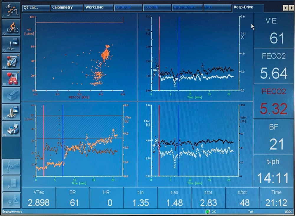 Один из экранов данных при проведении спирометрии